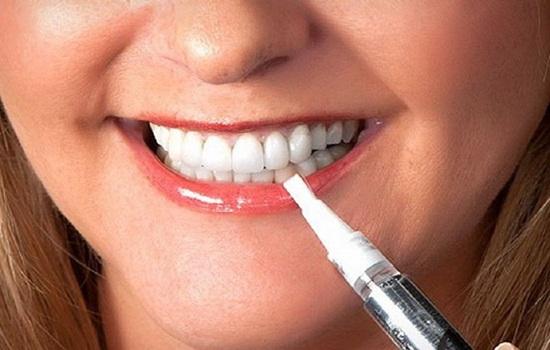 Можно ли курить айкос после отбеливания зубов – мнение стоматолога